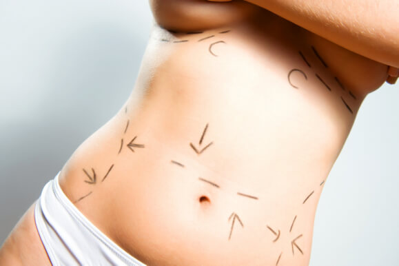 Liposuction 101 - What You Should Know and What to Expect
